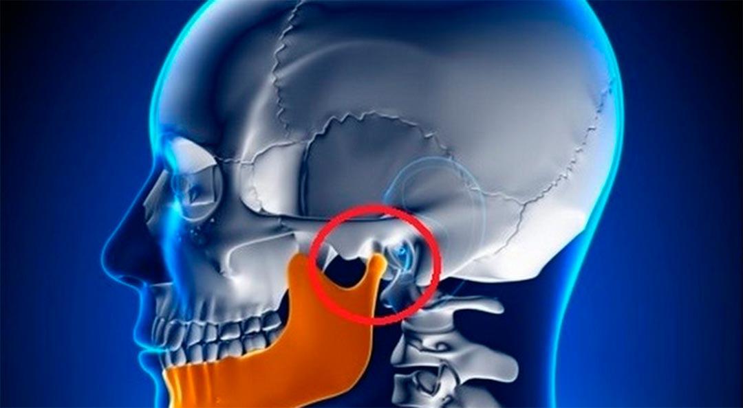 Articulación temporo-mandibular y el cuello. - QuiroMurcia