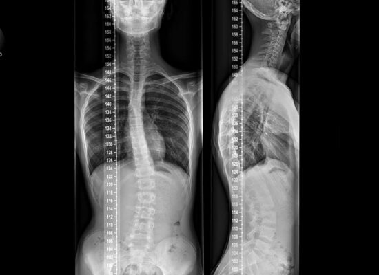 escoliosis quiromurcia