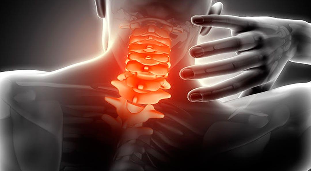 cervical dolorida